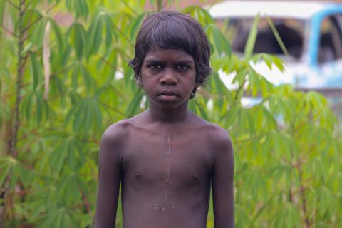A boy from Wadeye in the Northern Territory shows his fresh open heart surgery scar caused by RHD.